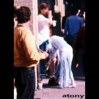 Atony