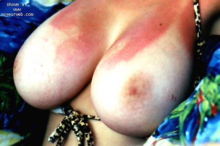 Pic #1 OTL Breasts