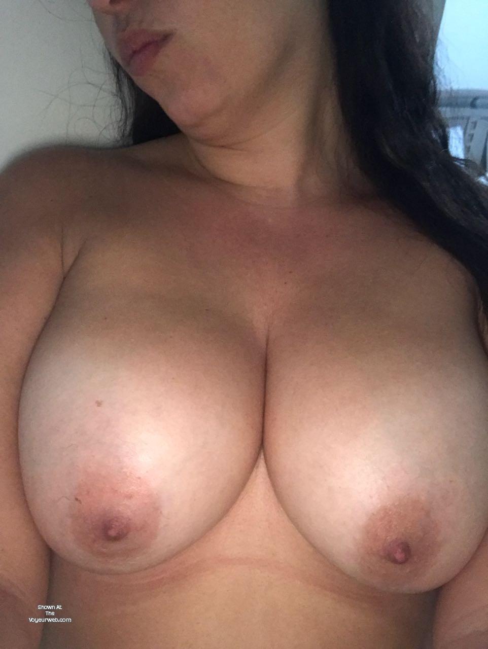 Apple Tits